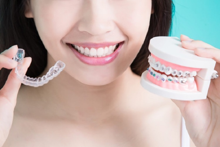 Nha khoa miền Tây - Dịch Vụ Niềng Răng
